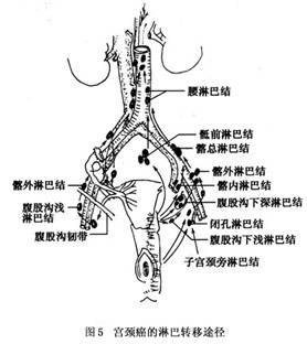 图5 宫颈癌的淋巴转移途径