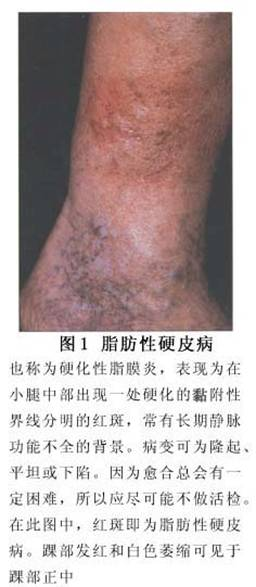 图1 脂肪性硬皮病