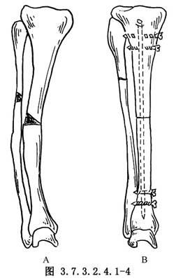 胫腓骨干骨折畸形愈合矫形交锁髓内钉固定术