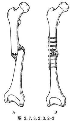 股骨干骨折畸形愈合矫正加压钢板内固定术医学
