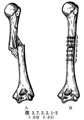 肱骨干骨折畸形愈合矫形术 医学百科