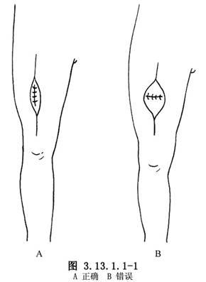 骨髓活检步骤示意图