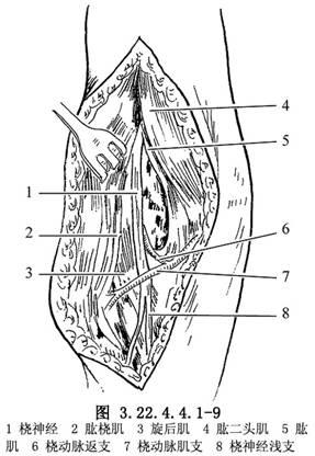 注意勿损伤神经(图3.22.4.4.1-9)