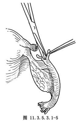 输卵管子宫内移植术_英文_拼音_医学百科