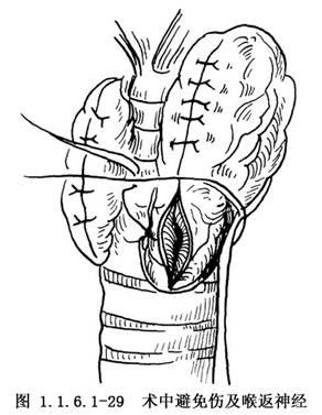 死刑男尸_喉返神经解剖_喉返神经解剖设计