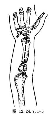尺骨原基切除和尺桡融合术