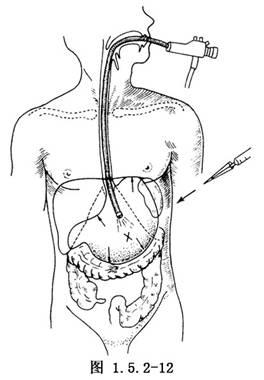 露出胃体部,于胃窦部大弯侧游离切断胃网膜右   动脉   ,沿胃大弯游
